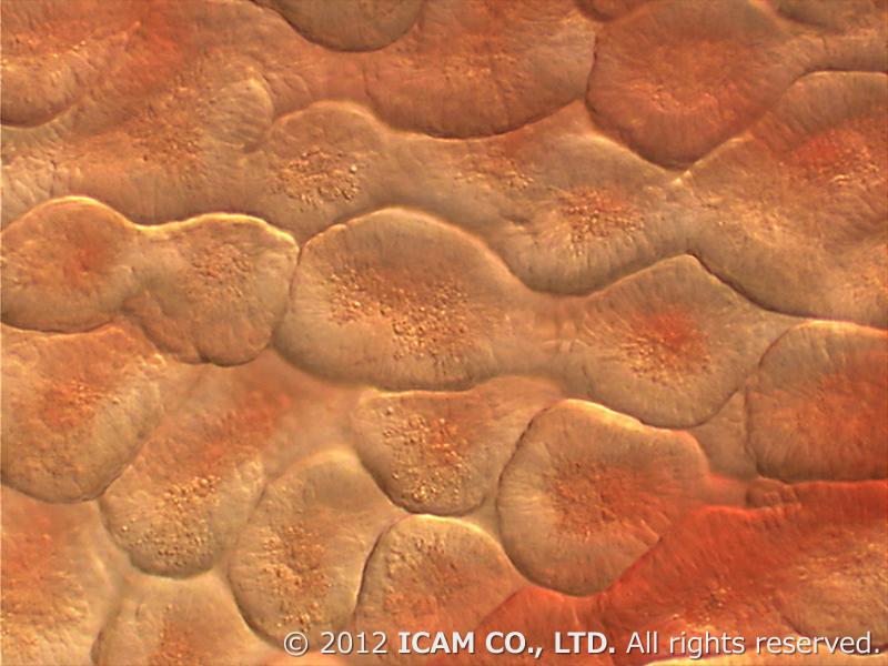 ミクロちゃん icam 顕微鏡 アイカム 大腸 粘膜